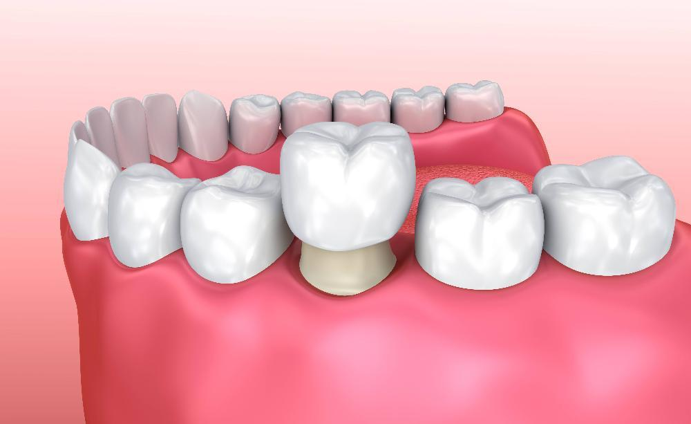 Dental crown placement in Allentown PA
