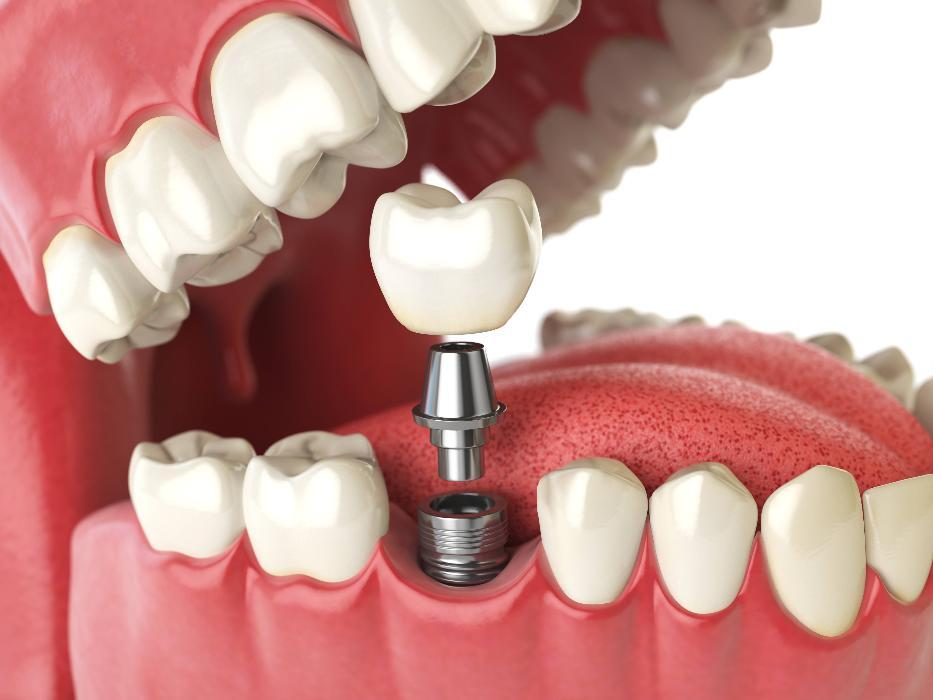 Best dental implants in Allentown PA