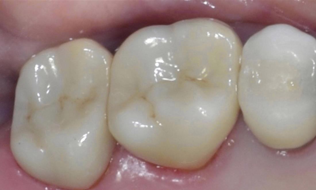 Patient with ceramic crowns | Allentown PA