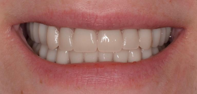 Complete-dentures-in-Allentown-PA-After-Image