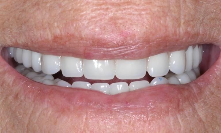 Implant-Supported-Denture-in-Allentown-PA-After-Image