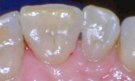 White-Fillings-in-Allentown-PA-After-Image