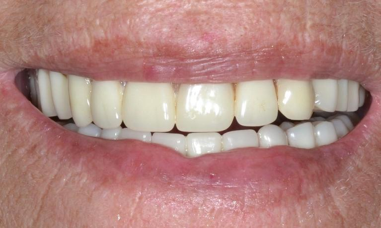 Implant-Supported-Denture-Before-Image