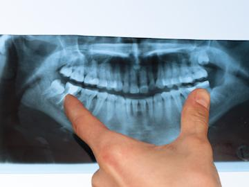 close up of dental x-ray l dentist allentown pa